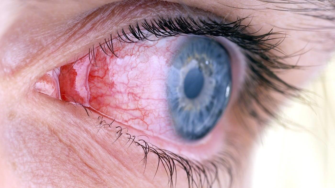 лечение инфекционных заболеваний офтальмология