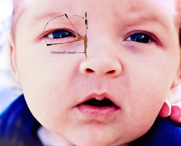 бужирование слезного канала детский офтальмолог